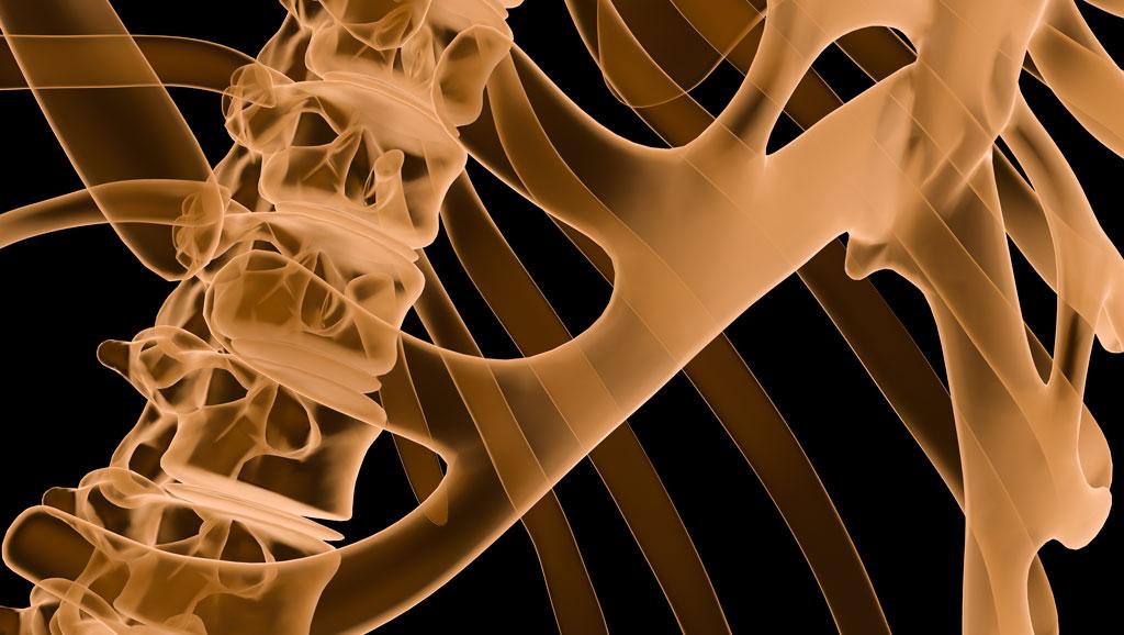 Arthritis xray